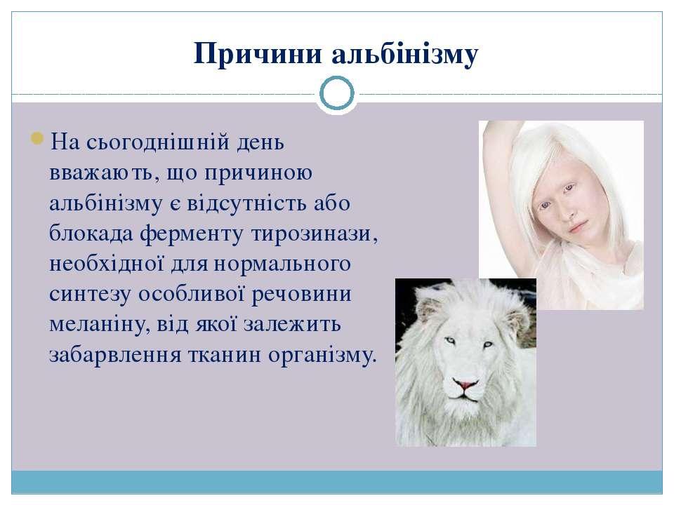 Причини альбінізму На сьогоднішній день вважають, що причиною альбінізму є ві...