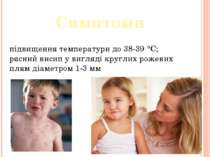 Симптоми підвищення температури до 38-39 °C; рясний висип у вигляді круглих р...