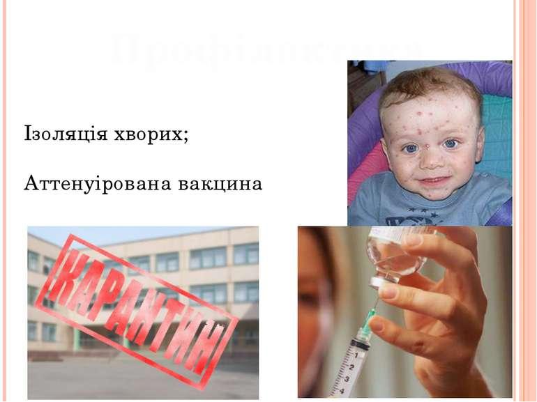 Профілактика Ізоляція хворих; Аттенуірована вакцина