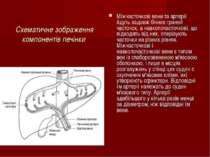 Схематичне зображення компонентів печінки Міжчасточкові вени та артерії йдуть...