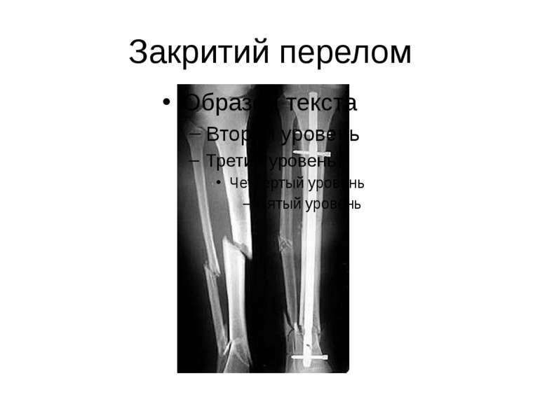 Закритий перелом