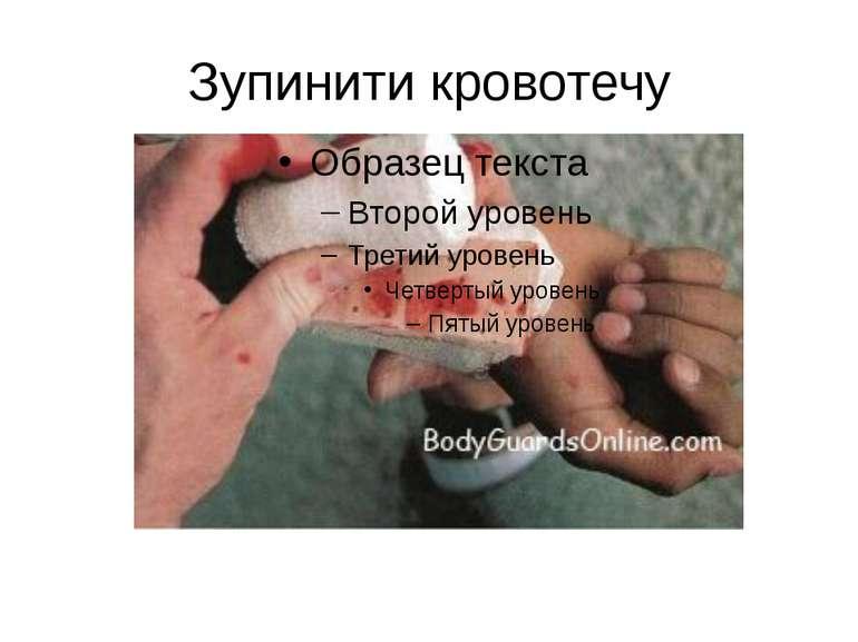 Зупинити кровотечу