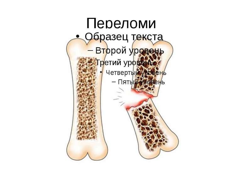 Переломи