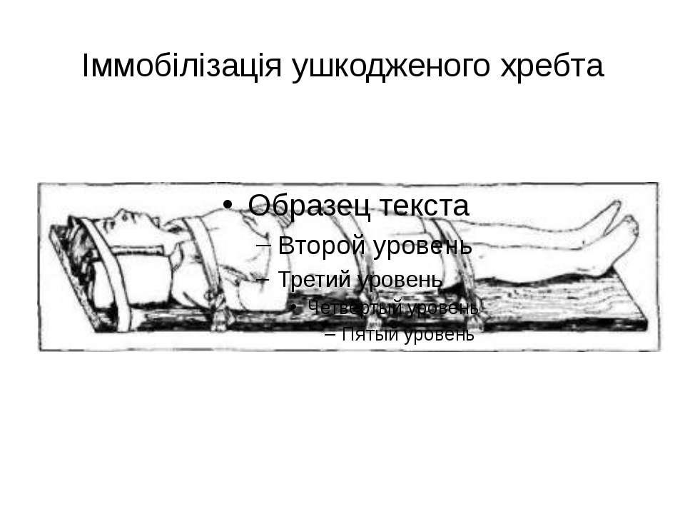 Іммобілізація ушкодженого хребта