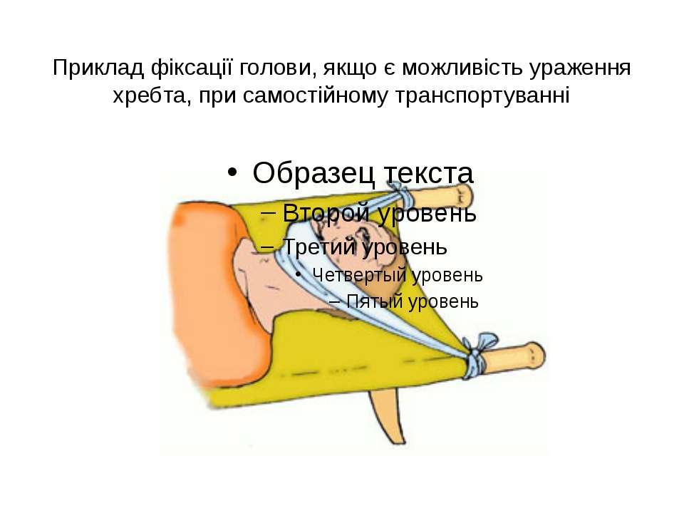Приклад фіксації голови, якщо є можливість ураження хребта, при самостійному ...