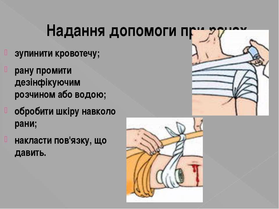 Надання допомоги при ранах зупинити кровотечу; рану промити дезінфікуючим роз...