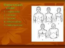 Форми грудної клітки: 1 – нормальна; 2 – плоска; 3 – куряча; 4- лійкоподібна;...