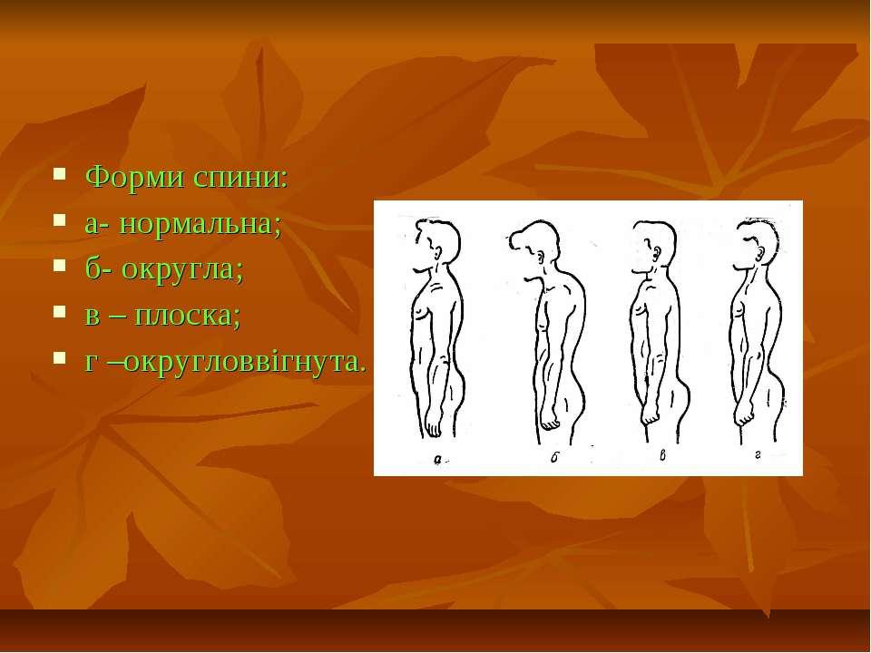 Форми спини: а- нормальна; б- округла; в – плоска; г –округловвігнута.