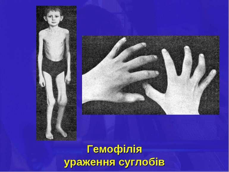 Гемофілія ураження суглобів