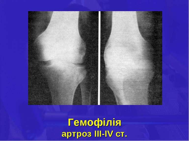 Гемофілія артроз III-IV ст.