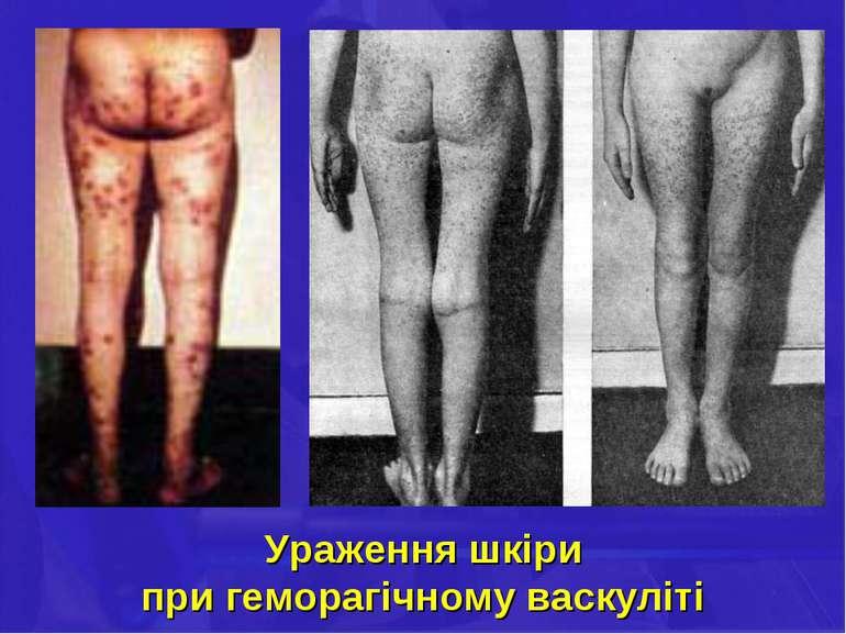 Ураження шкіри при геморагічному васкуліті