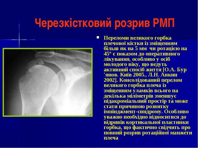 Черезкістковий розрив РМП Переломи великого горбка плечової кістки із зміщенн...