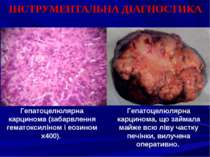 ІНСТРУМЕНТАЛЬНА ДІАГНОСТИКА Гепатоцелюлярна карцинома (забарвлення гематоксил...