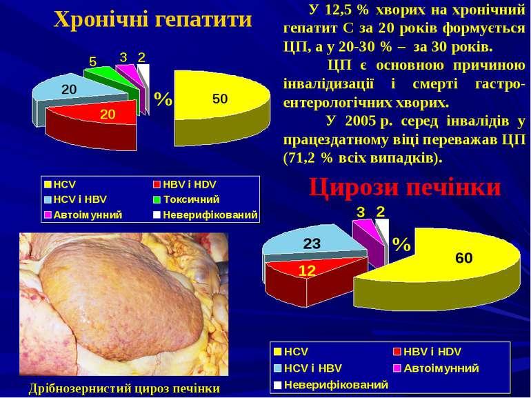 Цирози печінки Хронічні гепатити Дрібнозернистий цироз печінки % % У 12,5% х...