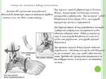 Ознаки та симптоми вивиху голеностопа При першого ступеня рвуться окремі воло...