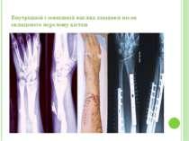 Внутрішній і зовнішній вигляд кінцівки після складеного перелому кістки