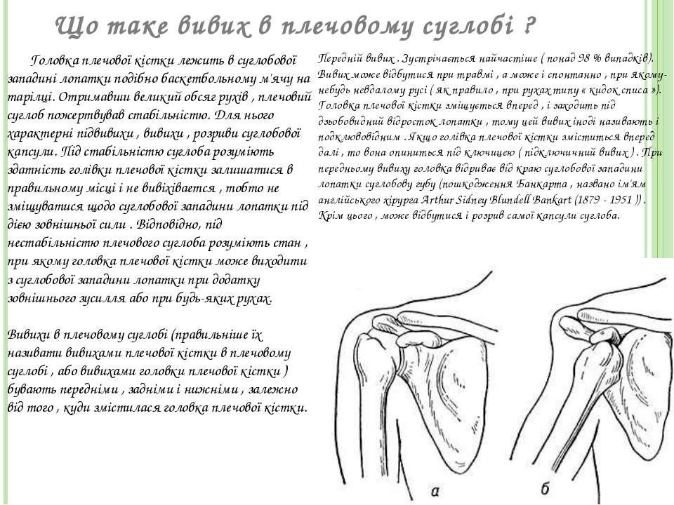 Що таке вивих в плечовому суглобі ? Головка плечової кістки лежить в суглобов...