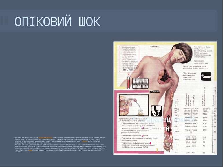 ОПІКОВИЙ ШОК Опіковий шок представляє собоюпатологічнийпроцес, який розвива...