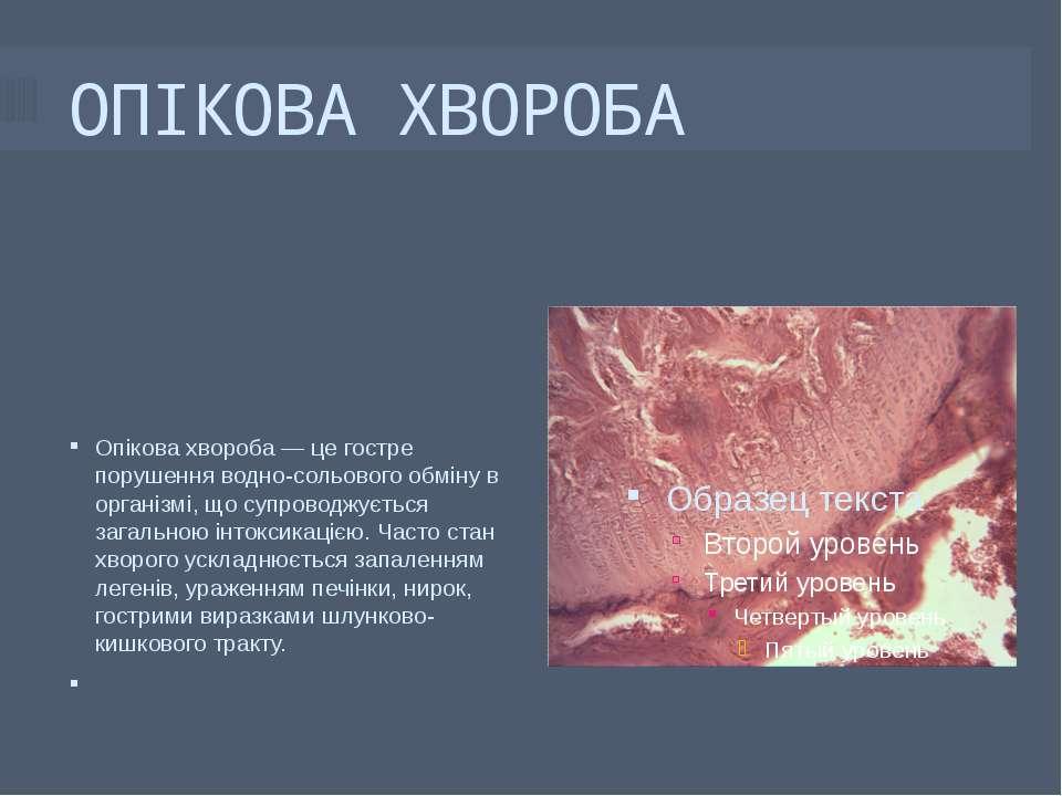 ОПІКОВА ХВОРОБА Опікова хвороба — це гостре порушення водно-сольового обміну ...