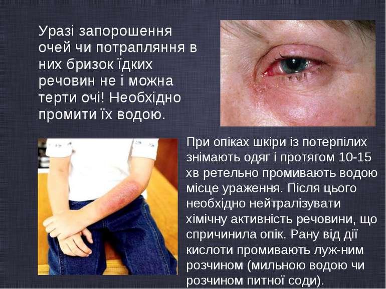 Уразі запорошення очей чи потрапляння в них бризок їдких речовин не і можна т...