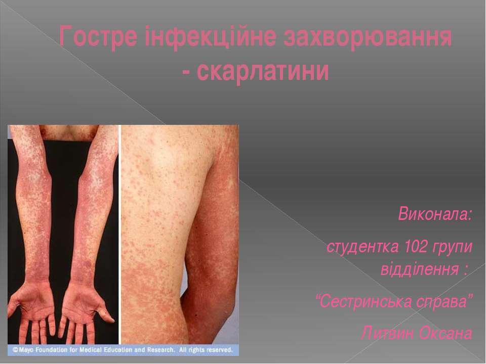 Гостре інфекційне захворювання - скарлатини Виконала: студентка 102 групи від...
