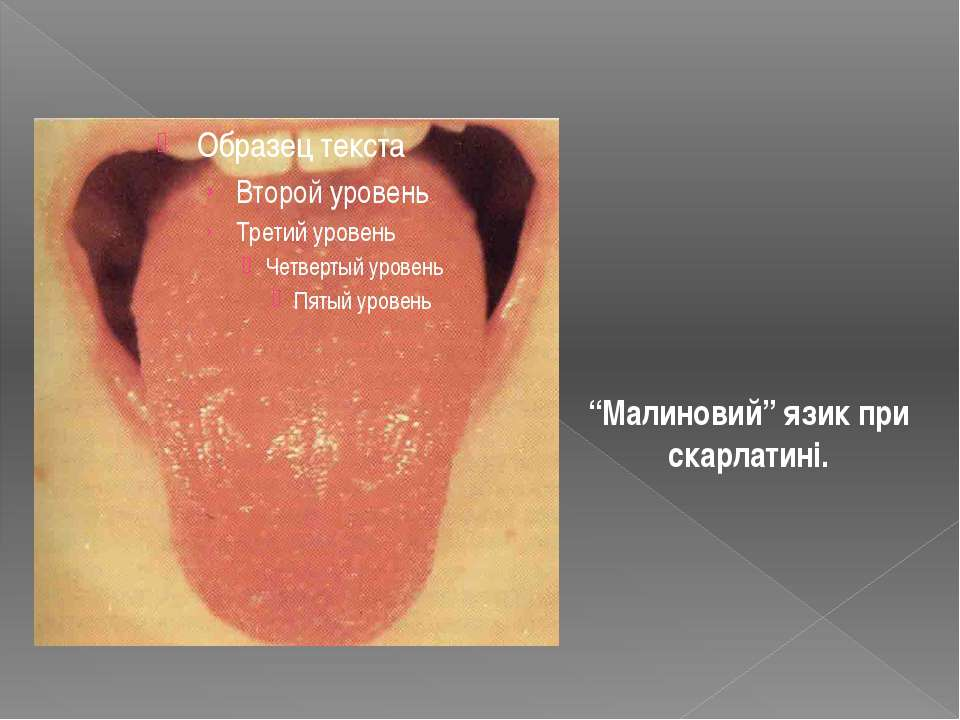 """""""Малиновий"""" язик при скарлатині."""