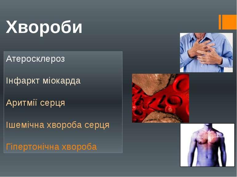 Хвороби Атеросклероз Інфаркт міокарда Аритмії серця Ішемічна хвороба серця Гі...