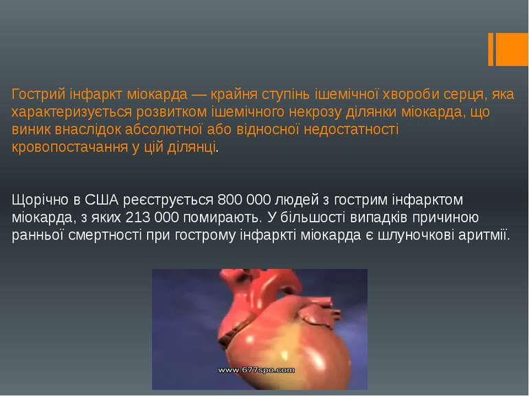 Гострий інфаркт міокарда — крайня ступінь ішемічної хвороби серця, яка характ...