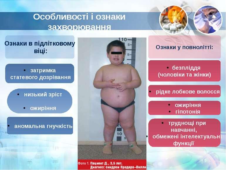 Особливості і ознаки захворювання Ознаки у повнолітті: Ознаки в підлітковому ...