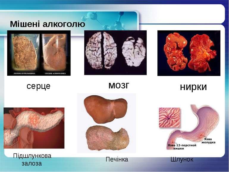 Мішені алкоголю серце мозг нирки Підшлункова залоза Печінка Шлунок
