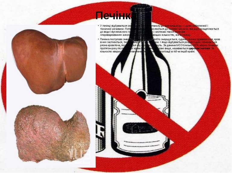 Печінка У печінці відбувається окислення 90-98%етанолудо ацетальдегіду — ду...