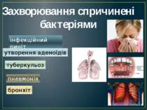 Захворювання спричинені бактеріями інфекційний риніт утворення аденоїдів тубе...