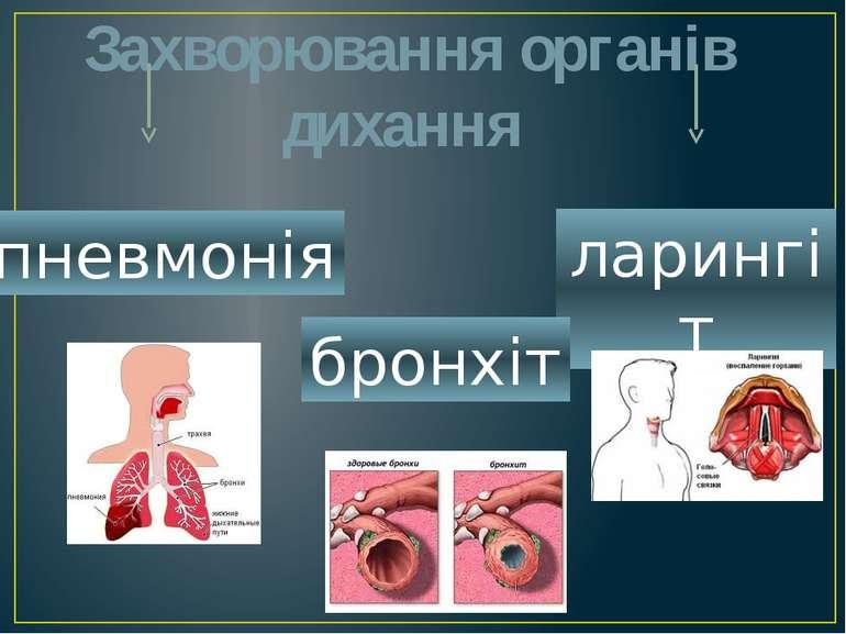Захворювання органів дихання ларингіт бронхіт пневмонія
