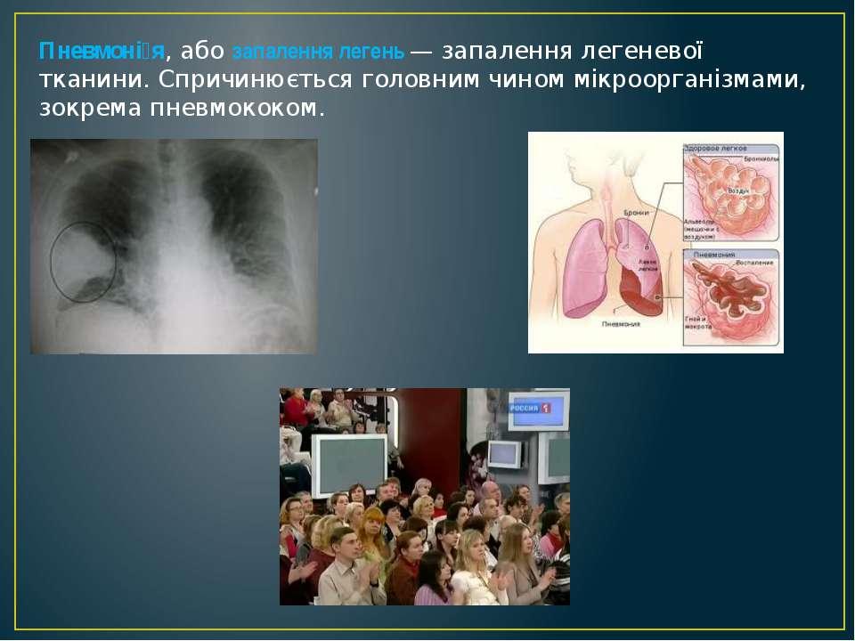 Пневмоні я, або запалення легень — запалення легеневої тканини. Спричинюється...