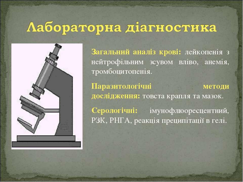 Загальний аналіз крові: лейкопенія з нейтрофільним зсувом вліво, анемія, тром...