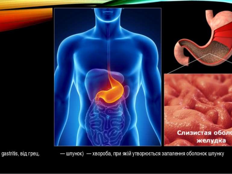 Гастрит (лат. gastritis, від грец. γαςτερ — шлунок) — хвороба, при якій утвор...