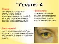 Гепатит А Шляхи передачі: спричиняється вірусом гепатиту А, що потрапляє до о...