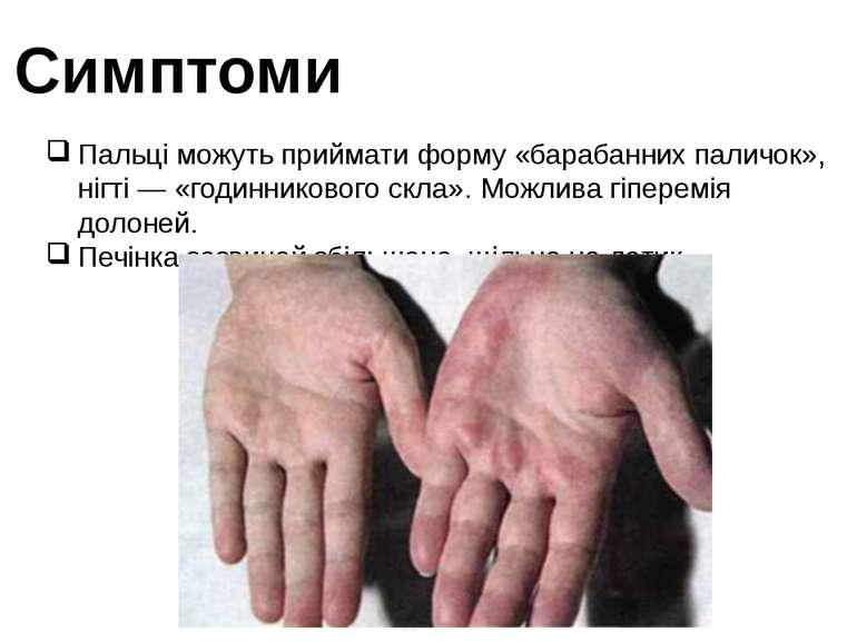 Симптоми Пальці можуть приймати форму «барабанних паличок», нігті — «годинник...