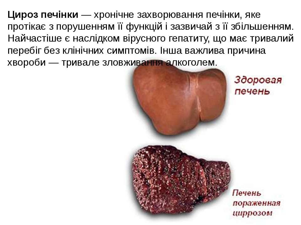 Цироз печінки — хронічне захворювання печінки, яке протікає з порушенням її ф...
