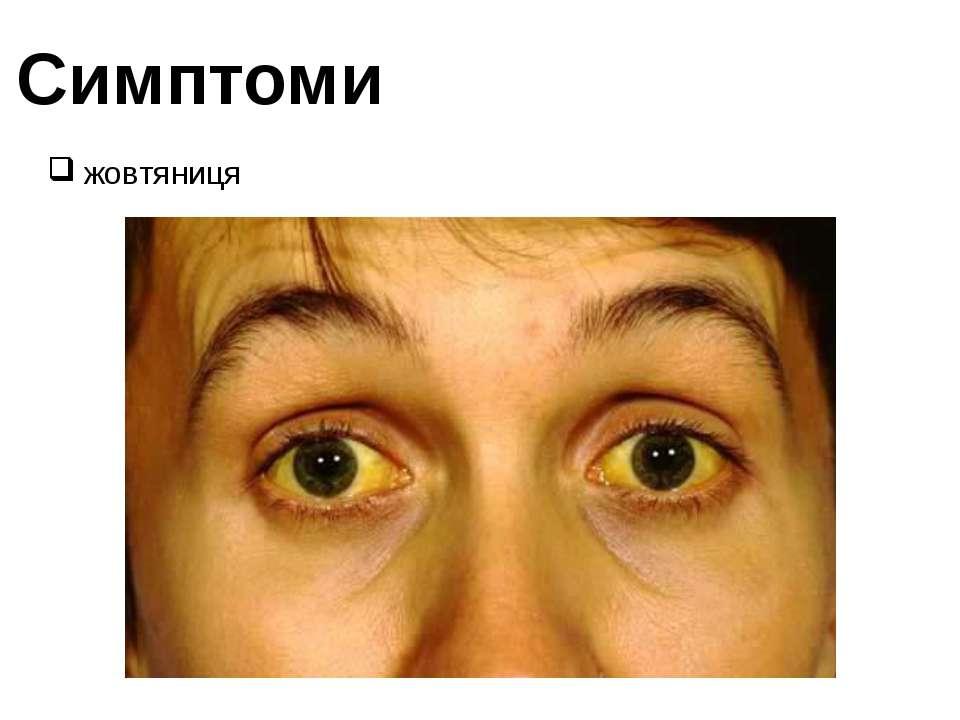 Симптоми жовтяниця