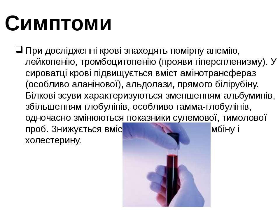 Симптоми При дослідженні крові знаходять помірну анемію, лейкопенію, тромбоци...