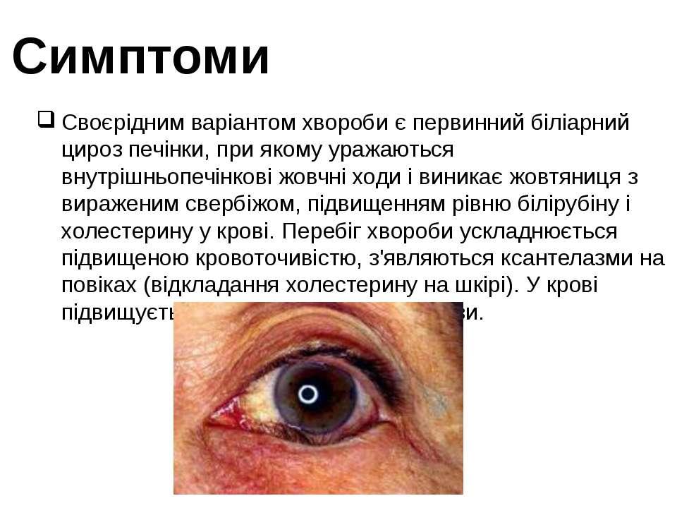 Симптоми Своєрідним варіантом хвороби є первинний біліарний цироз печінки, пр...