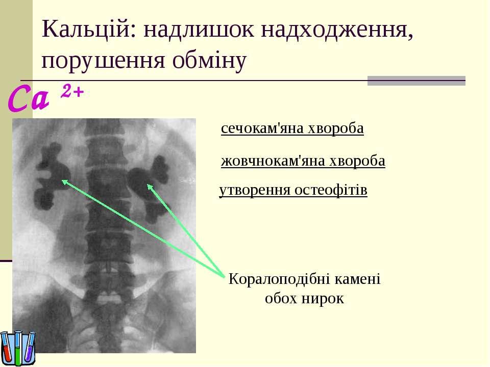 Кальцій: надлишок надходження, порушення обміну сечокам'яна хвороба Коралопод...