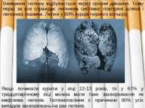 Вживання тютюну відбувається через органи дихання. Тому перш за все стражда...