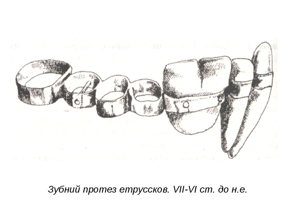 Зубний протез етруссков. VII-VI ст. до н.е.