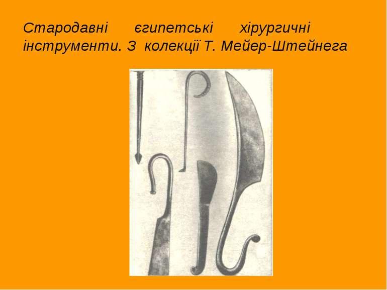 Стародавні єгипетські хірургичні інструменти. З колекції Т. Мейер-Штейнега