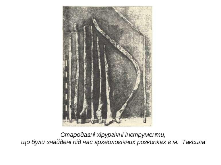 Стародавні хірургічні інструменти, що були знайдені під час археологічних роз...
