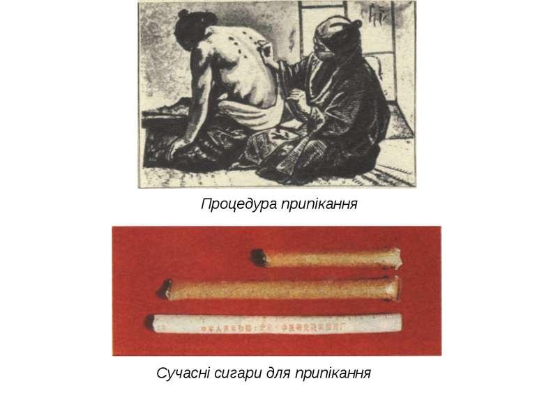 Процедура припікання Сучасні сигари для припікання