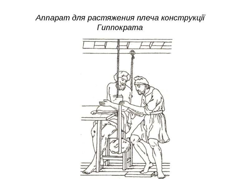 Аппарат для растяжения плеча конструкції Гиппократа