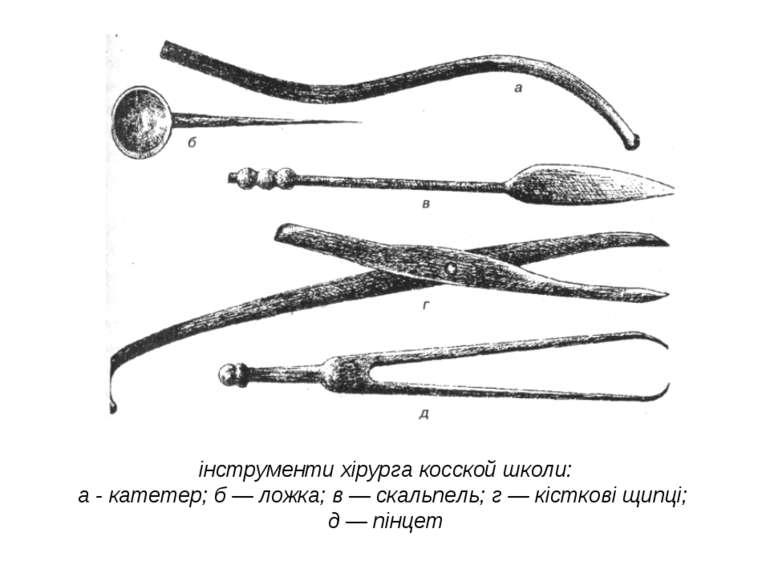 інструменти хірурга косской школи: а - катетер; б — ложка; в — скальпель; г —...